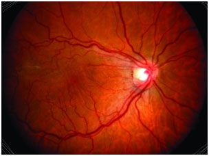 Epiretinal Membranes Typically Occurs In Those Over Age 50 And There Is A Slightly Higher Incidence Females Most Cases The Cause Unknown But